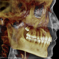 3d-dental-imaging