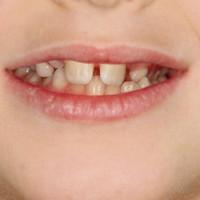ortodonzia-fissa-1-1170x473
