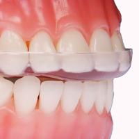 In pratica si corregge la deviazione mandibolare causata dalla malocclusione. La placca individuale deve essere funzionalizzata cioè adattata alle funzioni dell'apparato e dà un effetto immediato.