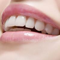 estetica-dentale-2
