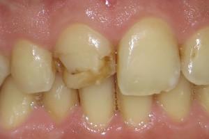 Dente deteriorato