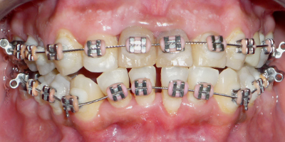 fase ortodontica superiore ed inferiore
