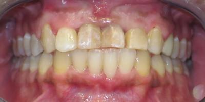 fine trattamento ortodontico e parodontale
