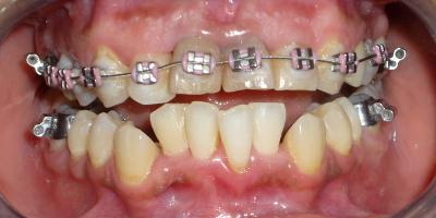 fase ortodontica superiore e parodontale inferiore