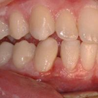 - otturazioni fatte male  - mancanze dentarie  - gravi problemi ortodontici - protesi errate o usurate
