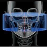 per una corretta valutazione della anatomia della articolazione temporo-mandibolare, cavità glenoide del cranio, capitelli mandibolari, spazio meniscale. sia nella statica che nella dinamica