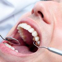 """Si identificano anomalie dell'occlusione, otturazioni fatte male, mancanze dentarie, denti  """"storti"""", ma anche protesi mobili o fisse incongrue o denti mobili, ecc"""